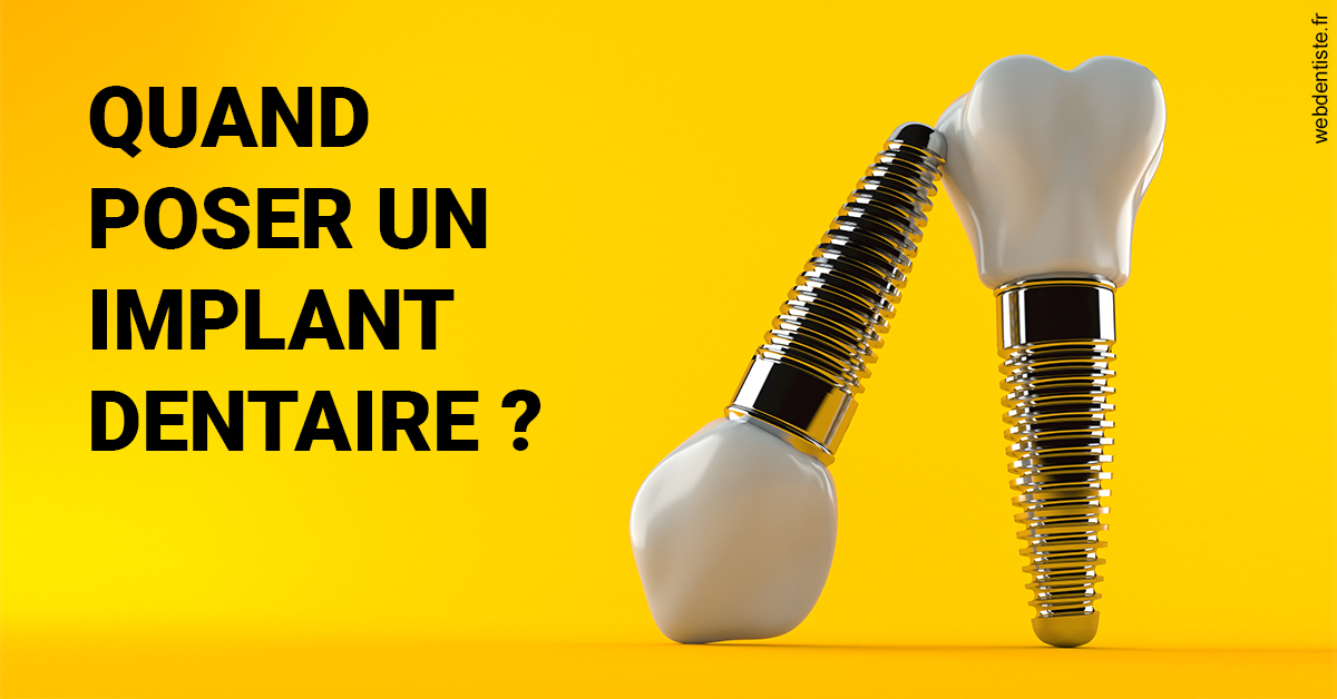 https://dr-bounet-philippe.chirurgiens-dentistes.fr/Les implants 2