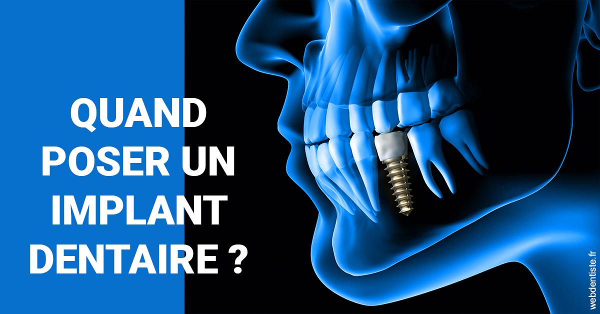https://dr-bounet-philippe.chirurgiens-dentistes.fr/Les implants 1